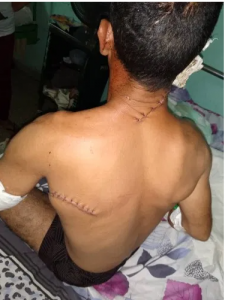 Lee más sobre el artículo Continúan los asesinatos y brutalidad policial en Cuba.